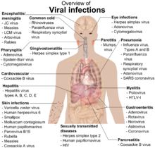 A photograph of the upper body of a man labelled with the names of viruses that infect the different parts