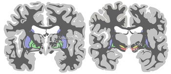 Basal-ganglia-coronal-sections-large.png